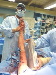 Image result for military trauma surgery