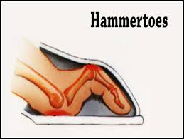 Image result for cartiva hammer toe image