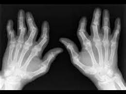 Risultati immagini per artrite ed artrosi