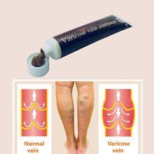 Leg Pain <b>Varicose Veins</b>