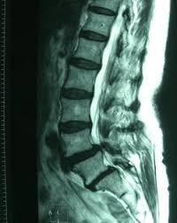 「腰部脊柱管狭窄症」の画像検索結果