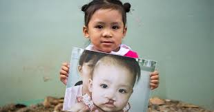<b>Smile</b> Train | Cleft Lip and Palate Children's Charity