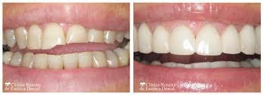 Resultado de imagen de dientes rotos antes y despues
