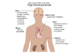 Image result for images for main complication of high blood pressure
