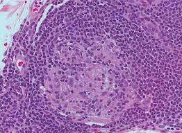 Image result for Leprosy in the lab