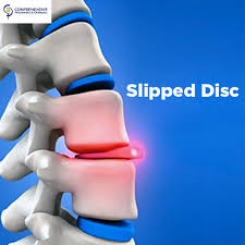 Image result for slipped disc