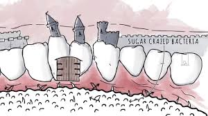 How Xylitol Works | <b>Spry Dental Defense</b> from Xlear - YouTube