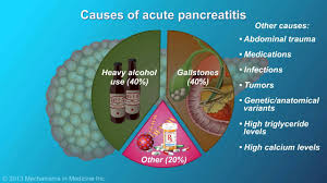 Image result for pancreatitis