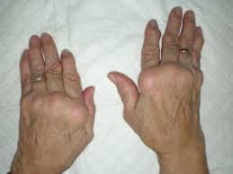 類風濕性關節炎的症狀及相關知識彙整    類風濕性關節炎的症狀主要是以疼痛的症狀來表現,通常患者會出現的症狀有下列數種:   1. 初期患者會有感覺疲倦、很累、精神不佳、胃口不好、體重減少、全身酸痛、關節不適等全身性症狀。   2. 關節出現紅、腫、熱、痛,關節僵硬且具有對稱性,關節的周圍組織如韌帶、肌腱和肌肉也會有相同的症狀。病情嚴重者會有關節破壞、變形的多發性病變。   3. 出現一個以上的關節疼痛、關節腫脹。關節處會產生小結節,關節腫脹的時間長達六星期以上。   4. 關節疼痛、關節腫脹主要以手和足的小關節,如掌指(跖趾)關節、近端指間(趾間)關節,以及腕、肘、膝和踝關節等多見。   5. 早上起床時,關節特別僵硬,往往需要活動三十分鐘,才會好轉,這種情況會持續六星期以上。   6. 百分之八十的患者血液檢查類風濕性因子會呈陽性反應。   7. X光片上的典型變化,早期在關節的周圍常發生骨質疏鬆的現象,晚期則可見到滑膜侵入髖骨內所產生的空洞,甚至嚴重變形的關節架構。