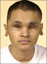 Abdul Malik, 20, who lost his eyes in a drive-by shooting, made an appeal to help catch his attackers. Police believe Mr Malik's attackers mistook him for ... - _44200775_abdul-malik_220