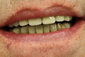 Crown (<b>dentistry</b>) - Wikipedia