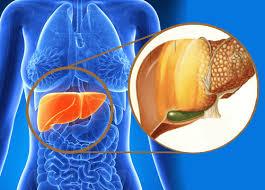 Image result for fatty liver