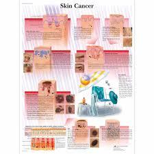 skin cancer persuasive essay essay skin cancer persuasive essay