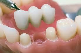 Несъемное протезирование зубов: вкладки, коронки ...