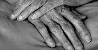 Risultati immagini per immagini mani artrite