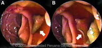 Znalezione obrazy dla zapytania fasciola hepatica