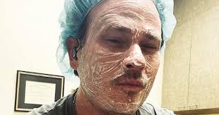 <b>Blink</b>-<b>182</b> Founder Tom DeLonge Reveals He Has Skin Cancer In ...