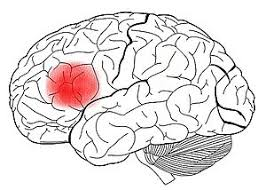 Resultado de imagen de afasia broca imagen cerebro