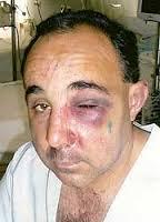 Manuel Reyes tras recibir la paliza. - 12