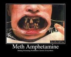 The Beautiful Faces and Effects of Meth! on Pinterest ... via Relatably.com