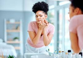 <b>Pimple</b> popping: Why only a dermatologist should do it