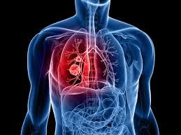 Image result for cancer image