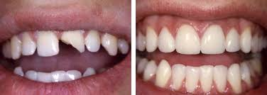 Kết quả hình ảnh cho trước - sau bọc răng sứ