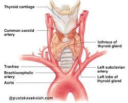 cara mengobati kelenjar tiroid