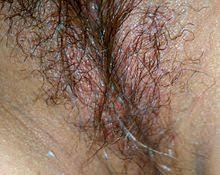 Vaginal <b>lubrication</b> - Wikipedia