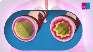 Afbeeldingsresultaat voor astma