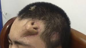 Chinese man has new nose grown on <b>forehead</b> - BBC News