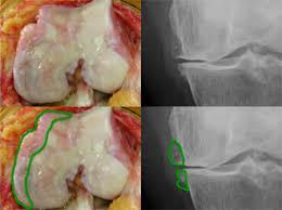 「変形性膝関節症と病態」の画像検索結果