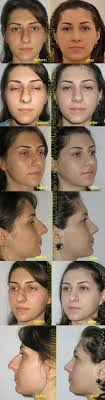 rhinoplasty nose job estetis clinic from r ia till beverly patient of 24 years old unhappy the appearance of the crooked nose having a septal deviation and nasal deviation increased functional distress