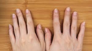 Как удалить <b>клей с ногтей</b> - wikiHow