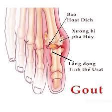Kết quả hình ảnh cho bệnh gout