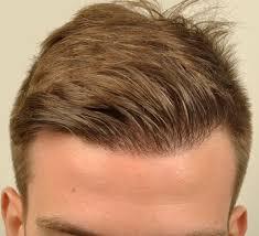 full head of hair treatment in turkey