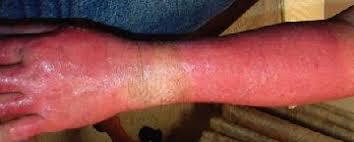 body burn ile ilgili görsel sonucu