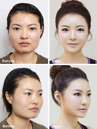 plastic surgery in korea essay writing   homework for you plastic surgery in korea essay writing img