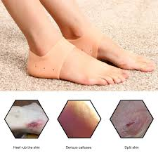 * 【<b>wholesale</b>】Gel <b>Silicone</b> Cracked <b>Foot</b> Heel Skin Moisturizing ...