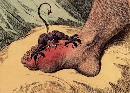 Image result for food that causes gout