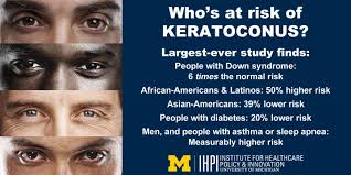 Image result for keratoconus