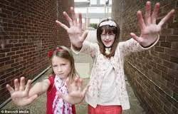 Image result for marfan syndrome girl