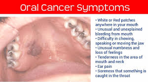Image result for oral cancers