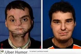 Richard Lee Norris, horribly disfigured in a shotgun accident ... via Relatably.com