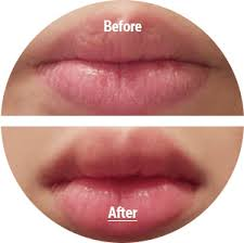 <b>Маска</b>-<b>патч для губ</b> с коллагеном Berrisom <b>Sos</b> My Lip Patch ...