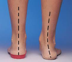 Orthotics can correct foot imbalances, decreasing pain