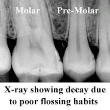Dentist in Franklin, TN with an x-ray showing decay, best dentist for family and cosmetic dentistry, dentist office for teeth whitening zoom! in-office whitening.
