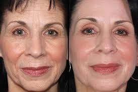 Image result for laser resurfacing