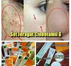 Image result for clobetamil g