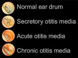 Image result for otitis media